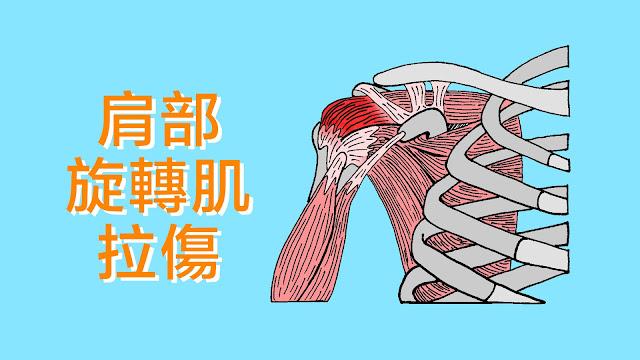 好痛痛 肩部旋轉肌拉傷 肩膀
