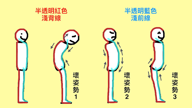 好痛痛 解剖列車 淺前線 淺背線 姿勢 平衡 彎腰駝背 抬頭挺胸 軍人姿勢 翹屁股