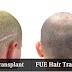 طرق زراعه الشعر المختلفة الاقتطاف والشريحة