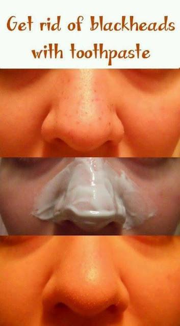 فوائد معجون الأسنان العجيبة و 5 فوائد للبشرة  ستذهلك وتمنح بشرتك الحيوية والجمال