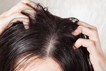 masalah ketombe di rambut