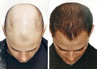 أسباب وعلاج الصلع 20 طريقة لعودة الشعر من جديد .
