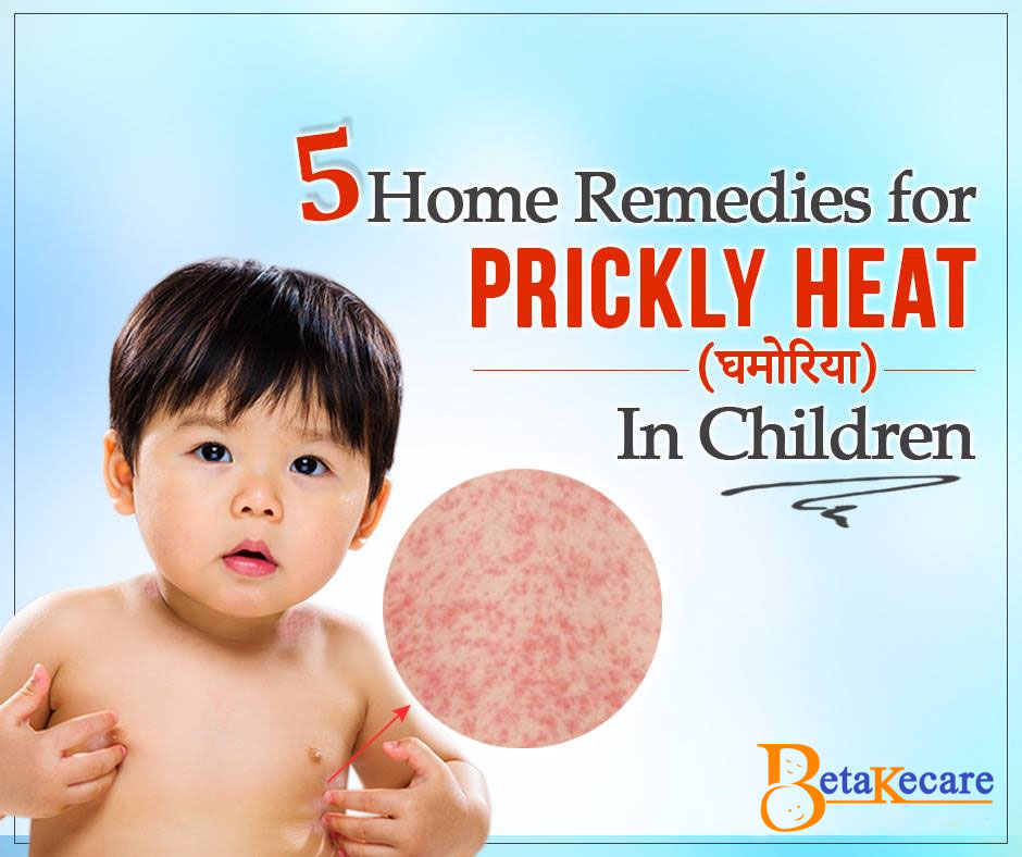 5 Home Remedies For Prickly Heat in Children