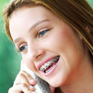 Niềng răng ở đâu tốt với thiết bị hiện đại?