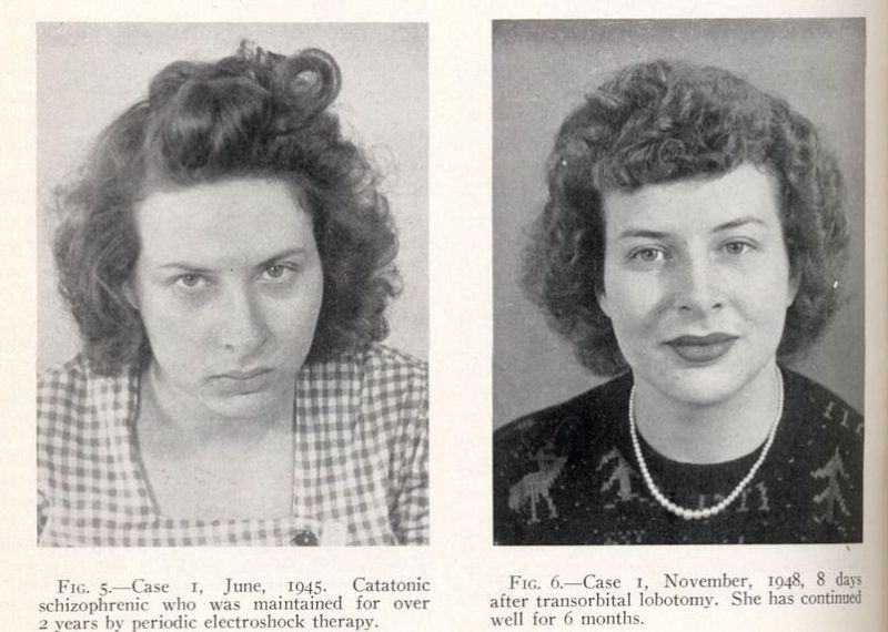 lobotomy-before-and-after-1.jpg