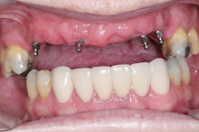 Quy Trinh Cay Ghep Mini Implant 2