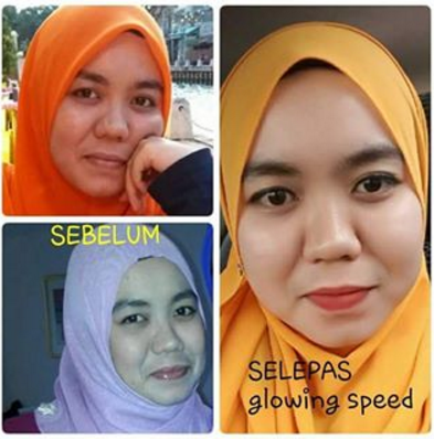 testimoni glowing speed skincare