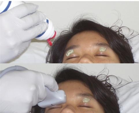 Hospitalist ~病院総合診療醫~: Optic nerve sheath diameterと頭蓋內圧亢進