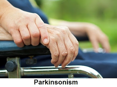 Parkinsonism Causes, Symptoms And Treatment
