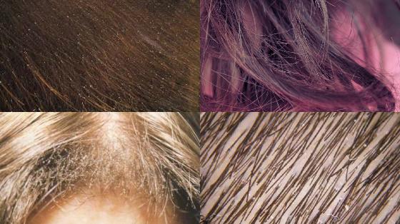 pontinhos brancos no cabelo