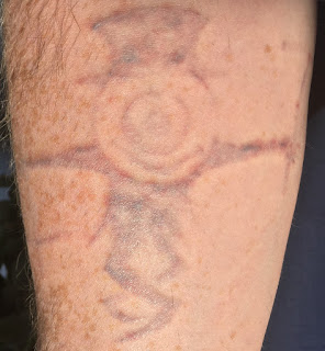 Tattoo 48 hours after picosure laser removal