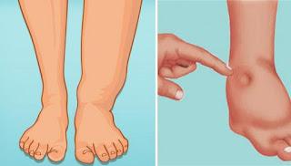 4 huiles essentielles qui réduisent la rétention d'eau et l'enflure dans les jambes