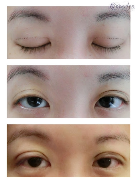 Scarless Double eyelid surgery Singapore review