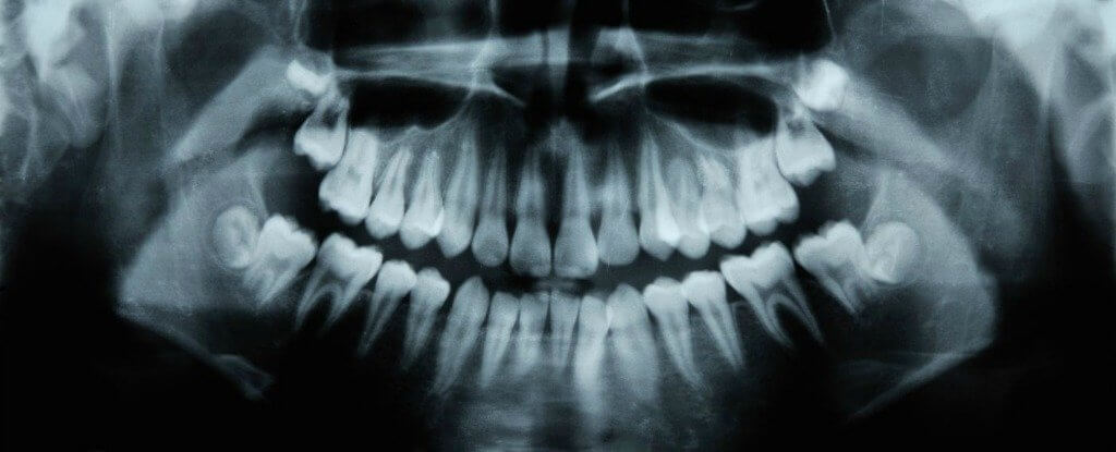 Researchers Discovered That An Alzheimer's Drug Can Help Teeth Repair Cavities