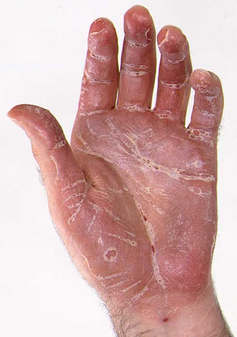 Tratamientos para la Psoriasis Palmoplantar