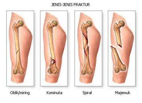 Obat Untuk Mempercepat Penyembuhan Patah Tulang