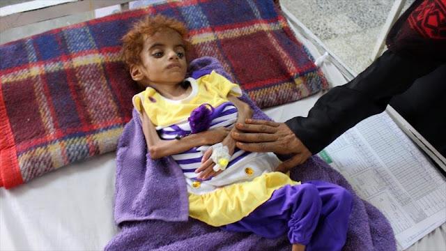 ONU: La hambruna amenaza a la mitad de la población en Yemen