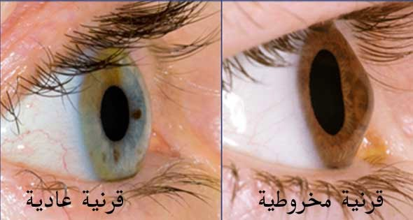 49c43a04d القرنية المخروطية (Keratoconus) هو مرض في العين تتحدب فيه القرنية، تدريجيا،  وتتحول من شكل قبة متناظرة إلى شكل يشبه المخروط غير المتناظر.