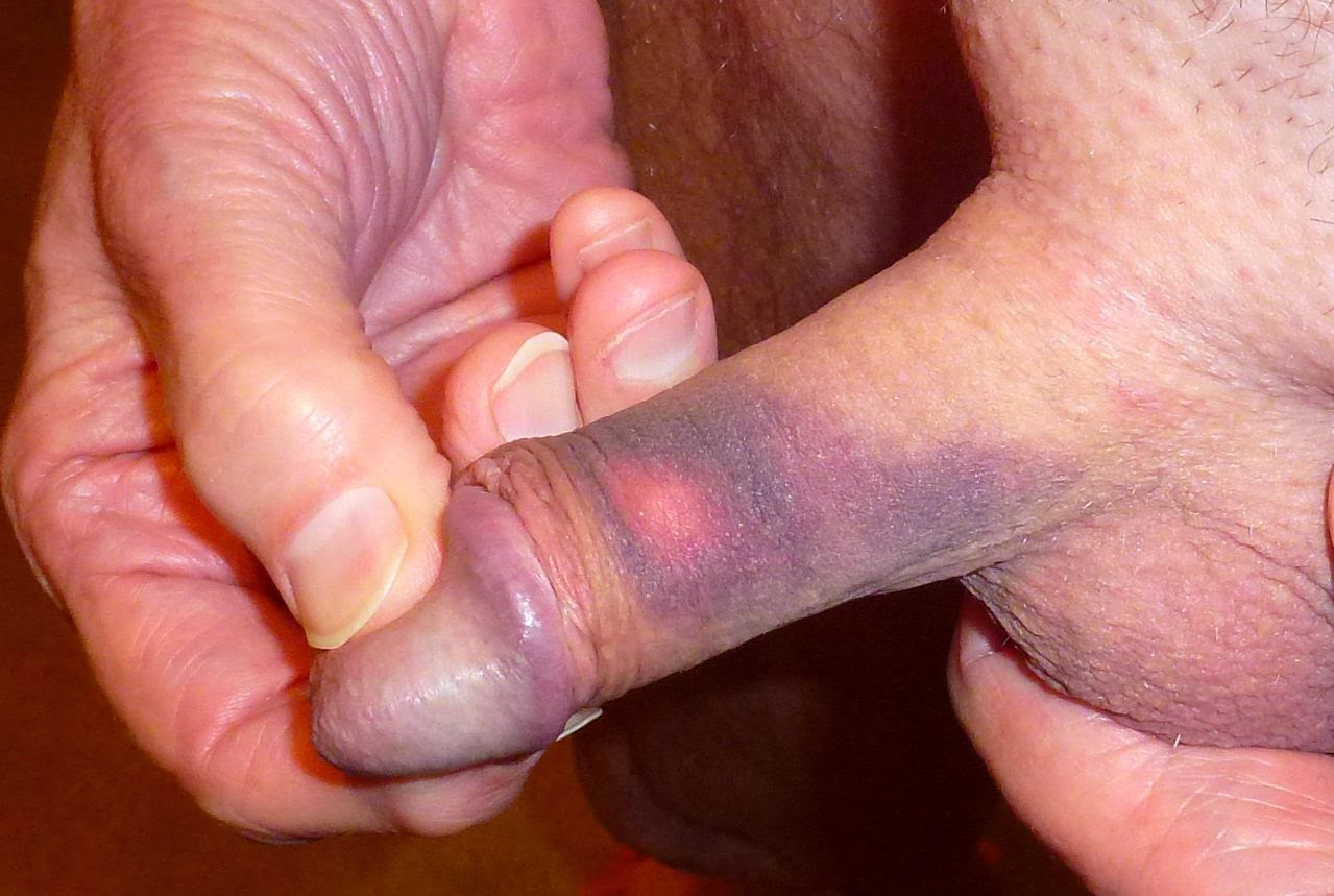 Black and blue penis head