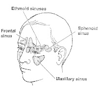 Allergic Fungal Sinusitis-Health info Web Page
