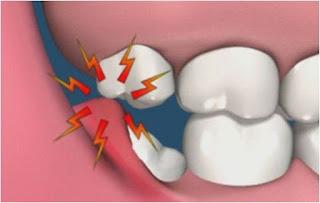 có nên nhổ răng khôn mọc lệch hay không?