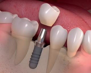 Danh sách các loại, hệ thống implant nha khoa