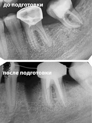 Рентген до и после подготовки к ортодонтическому лечению