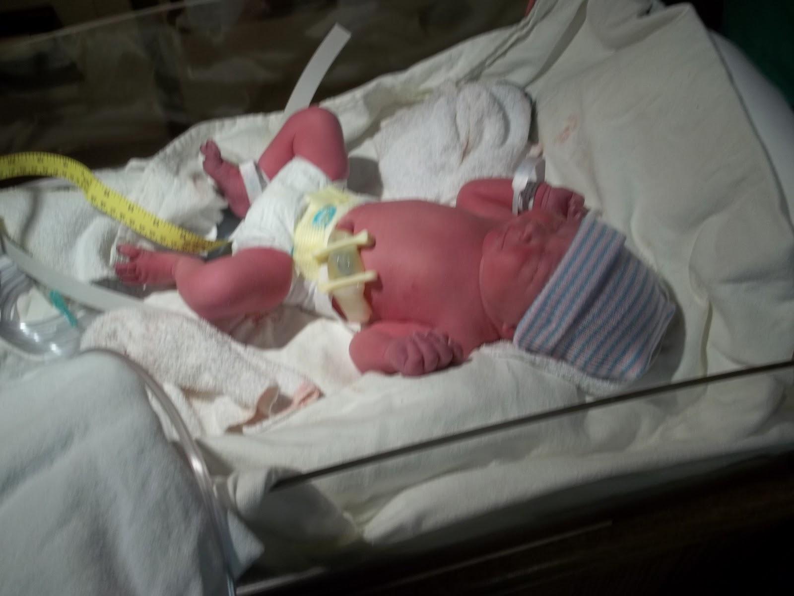 baby born at 35 weeks