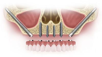 http://chennaidentalimplantsclinic.com/zygomatic-implants/