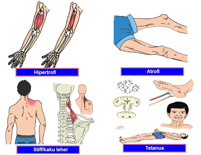 Kelainan, Gangguan, atau Penyakit Otot Manusia