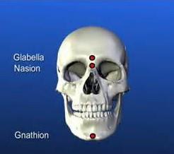 titik ujung sudut mandibula