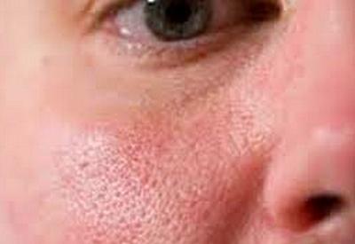 Cara Menghilangkan Pori-Pori di Wajah