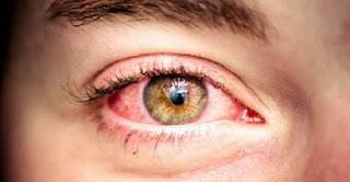 6 remèdes maison pour calmer la sensation des yeux fatigués