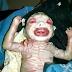 Deri Deformasyonuyla Doğan Talihsiz Bebek  (VİDEO)