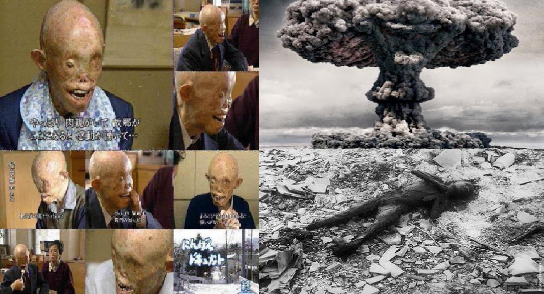 Fotos das vitimas da bomba atomica 20