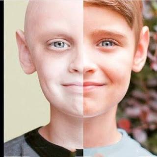 مرض السرطان...حصري