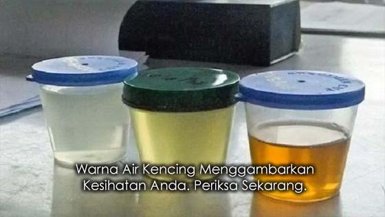 Maksud Disebalik Warna Air Kencing Anda Dari Segi Kesihatan