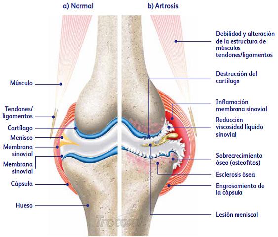 Artritis o artrosis en perros.