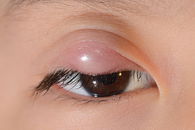 Most Effective Treatment for Stye in Eye