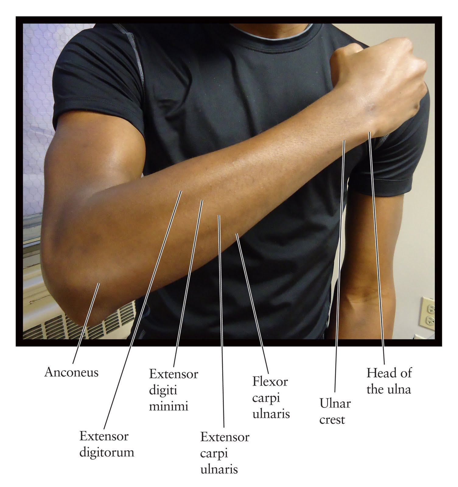 Cat Muscles - Anatomy & Physiology 2264 with Toedt at ... |Dorsal Arms