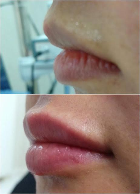 Dudak dolgusu nedir? - Dudak dolgusu nasıl yapılır? - Dudak dolgusunun riskleri - Dudak dolgusu ihtiyacı - Dudak dolgusu fiyatı - Dudak dolgusu sonrası dudakta hissizlik olur mu? - Dudak dolgusu riskleri - Dudağa dolgu - Doğal dudak dolgusu - Geçici dudak dolgusu - Dolgu ile dudak kalınlaştırma - Dolgu ile dudak şekillendirme - Dolgu ile dudak büyütme - Dudak dolgusu yaptıranlar - Lip augmentation with filler - Shaping lips with fillers - Lip enhancement with fillers in İstanbul, Turkey - Non-surgical lip augmentation - Lip augmentation and enhancement with filler - Lip filler - Lip augmentation in Istanbul - Lip augmentation (hyaluronic acid fillers) in Istanbul - Dudak dolgusunun zararları