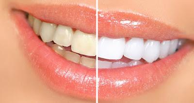 Cara memutihkan gigi kuning