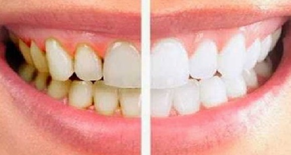 Hindar Penyebab Gigi Kuning Dan Cara Mengatasinya Tolong Dishare