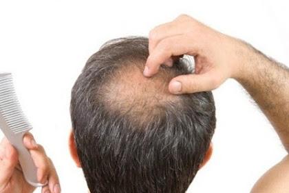 6 Cara Alami Menumbuhkan Rambut Botak Dengan Cepat