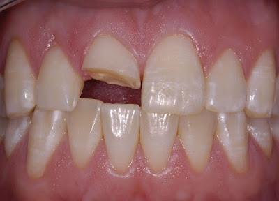 Răng bị gãy một nửa có làm lại được không?