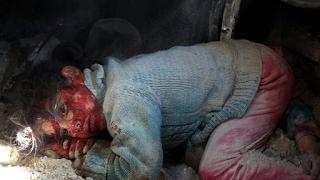 Συγκλονιστική φωτογραφία από την Συρία: Κoριτσάκι περιμένει να σωθεί δίπλα στη νεκρή αδερφούλα του