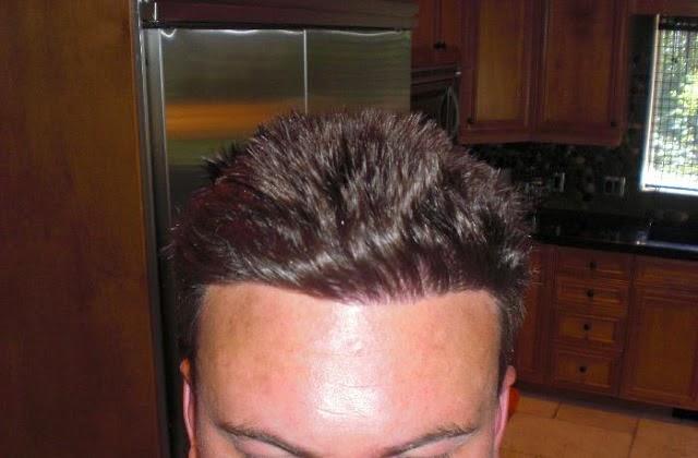 Hair Solutions Alvi Armani 2500 Grafts Class 2 Fue