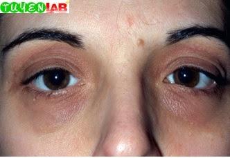 Fig. 5.17 Atopic dermatitis.