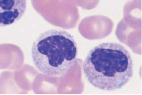 Band cells can also occur as aggregates.