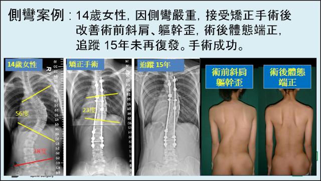 臺北榮總脊椎側彎治療團隊: 個案分享